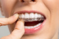 Holding Invisible braces Royalty Free Stock Photo