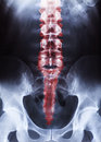 Human body on xray spine and pelvis of a x ray Royalty Free Stock Images