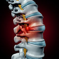 Human Herniated Disk Royalty Free Stock Photo