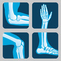 Human joints, knee and elbow, ankle wrist. Medical orthopedic vector set