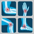 Human joints with pain rings. Arthritis and rheumatism infographic. Medical app vector buttons Royalty Free Stock Photo
