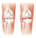 Human knee arthritis illustration of the on a white background Stock Photography