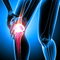 Human knee pain d rendered medical x ray illustration of transparent with blue background Stock Image