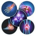 Human Painful Joints Royalty Free Stock Photo