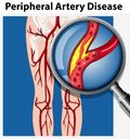 Human with Peripheral Artery Disease Royalty Free Stock Photo