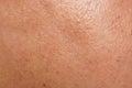 Human skin texture Royalty Free Stock Photo