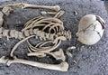 Human Skull and Skeleton Bones Royalty Free Stock Photo
