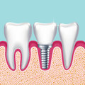 Human teeth and dental implant in jaw orthodontist medical vector illustration Royalty Free Stock Photo