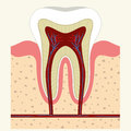 Human tooth and gum anatomy Royalty Free Stock Photo