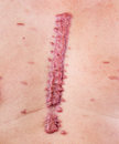 Hypertrophic scar big swell cicatrix Royalty Free Stock Images
