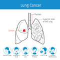 Illustration Of Human Lungs, Outline And Lung Cancer Symptoms Ic