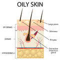 Illustration of the layers of oily skin on white background Royalty Free Stock Photography
