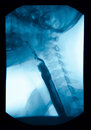 The image of x ray upper gastrointestinal ugi esophagram use swallow barium sulfate method Royalty Free Stock Photo