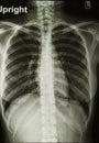 Imagem dos raios X de caixa Imagem de Stock