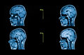 Imagens de um tomografia automatizado do cérebro Fotos de Stock Royalty Free