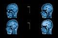 Immagini da una tomografia automatizzata del cervello Fotografie Stock Libere da Diritti