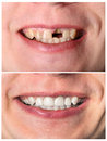 Incisive tooth restoration before and after treatment man s Stock Images