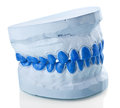 Individual plaster dental molds to make trays Stock Photos