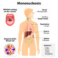 Infectious mononucleosis signs and symptoms of human silhouette with internal organs glandular fever pfeiffer s Royalty Free Stock Images