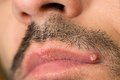 Ingrown hair view of caucasian man with mustache and pimple on upper lip Royalty Free Stock Photos