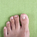 Ingrown toe nail badly infected Royalty Free Stock Images