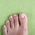 Ingrown toe nail Royalty Free Stock Photo