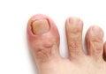 Ingrown toenail Royalty Free Stock Photo
