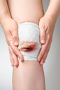 Injured knee with bloody bandage Royalty Free Stock Photo