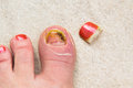 Injured toe nail growth Royalty Free Stock Photography