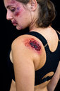 Injured woman with open wound on her shoulder Royalty Free Stock Image