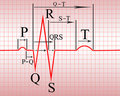 Intervals, compex of  ECG Royalty Free Stock Photo