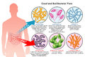 Intestinal bacterial flora medical illustration of the good and the bad Royalty Free Stock Images