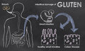 Intestinal damage of gluten on a blackboard Royalty Free Stock Image