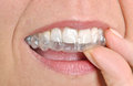 Invisible braces in a woman s mouth Royalty Free Stock Photos