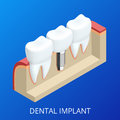 Isometric Tooth human implant. Dental concept. Human teeth or dentures. 3d illustration Isolated. Realistic vector Royalty Free Stock Photo