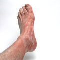 Itchy foot showing raised irritated rash like hives Royalty Free Stock Images