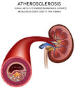Kidney artery disease