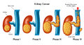 Kidney cancer medical illustration of the phases of Stock Photography