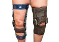 Knee braces Royalty Free Stock Photos