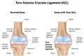 Knee joint torn anterior cruciate ligament a with a a common musculoskeletal disease Royalty Free Stock Photo