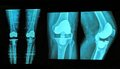 knee replacement xray Royalty Free Stock Photo