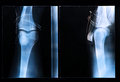 Knee x ray after surgery for anterior cruciate ligament injury Stock Photo