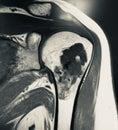Large chondroid lesion mri examination