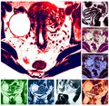 Large teratoma pathology colorful collage