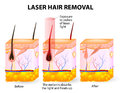 Laser hair removal vector diagram the emits an invisible light which penetrates the skin without damaging it at the follicle the Stock Photo