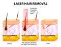 Laserový lúč vlasy odstránenie