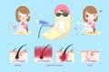 Laser leg hair concept