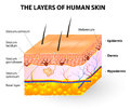 Layers of human skin melanocyte and melanin epidermis melanocytes produce the pigment which they can then transfer to other Royalty Free Stock Image