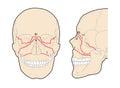 Le Fort Skull Fractures
