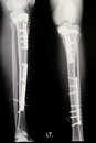 Leg x-rays image Royalty Free Stock Images